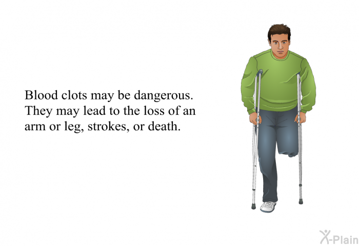 Blood clots may pose a dangerous threat to some people, as they may cause loss of a limb, strokes, and even death.